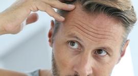 Winowajcy męskiego łysienia